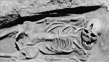 Χειρουργική επέμβαση στον εγκέφαλο τον 3ο αι. μ.Χ.