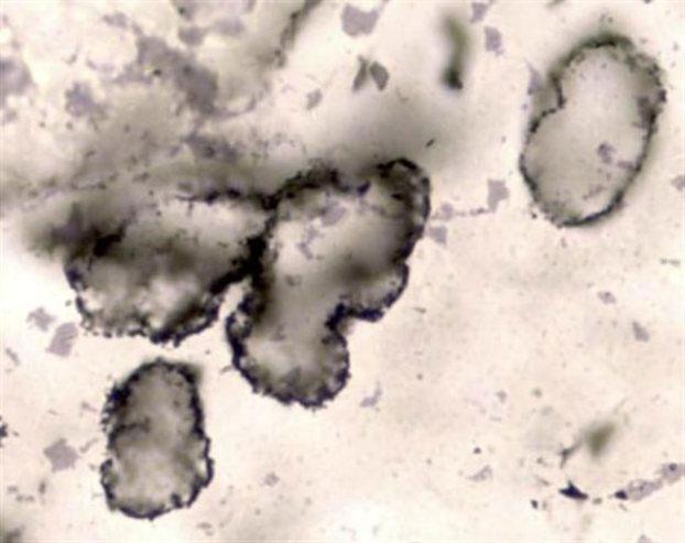 Τα απολιθώματα κυττάρων ηλικίας 3,4 δισεκατομμυρίων ετών που εντόπισαν οι επιστήμονες στην Αυστραλία.