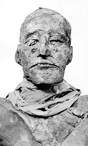 Η μούμια του Ραμσή Γ΄. Φαίνονται οι γάζες που εμπόδιζαν τους επιστήμονες να εντοπίσουν το μοιραίο τραύμα στο λαιμό του.