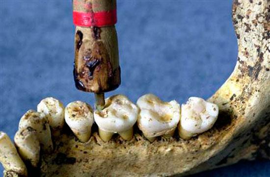 Οδοντιατρική: μια επιστήμη 9.000 ετών