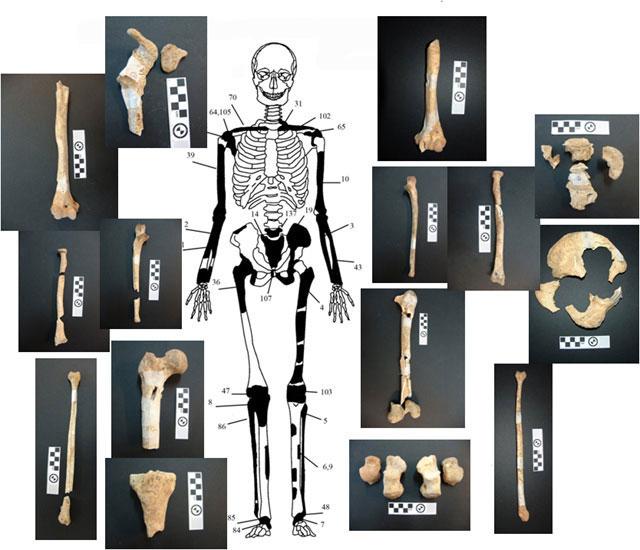 Αμφίπολη: Ενδεικτική εκπροσώπηση του οστών του δεύτερου νεκρού με φωτογραφίες οστών (φωτ. ΥΠΠΟΑ).