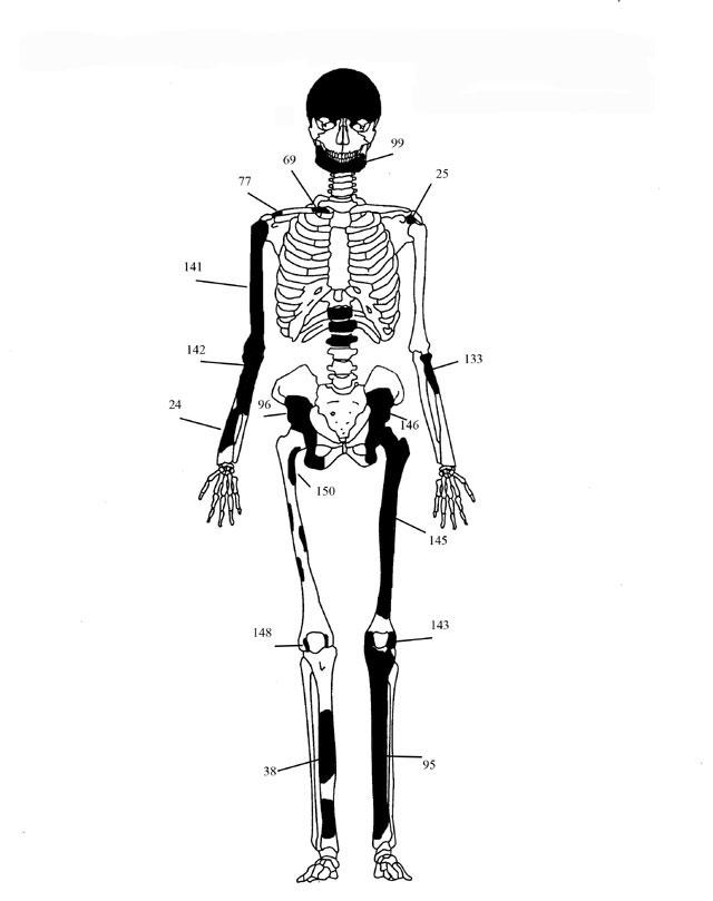 Εικ. 1. Ενδεικτική εκπροσώπηση οστών Ατόμου 1.
