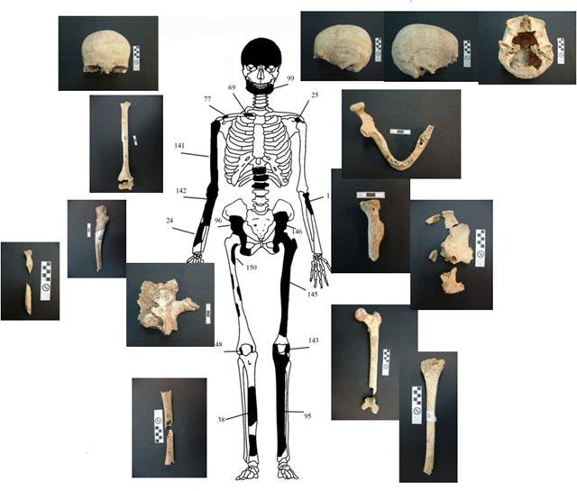 Εικ. 2. Ενδεικτική εκπροσώπηση οστών Ατόμου 1 με φωτογραφίες οστών.