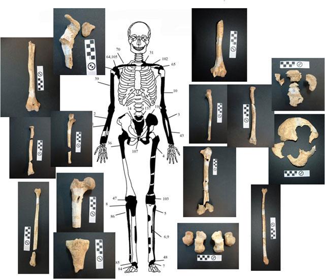 Εικόνα 4. Ενδεικτική εκπροσώπηση οστών Ατόμου 2 με φωτογραφίες οστών.