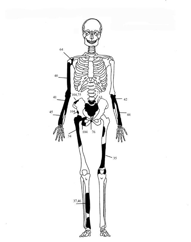 Εικ. 5. Ενδεικτική εκπροσώπηση οστών Ατόμου 3.