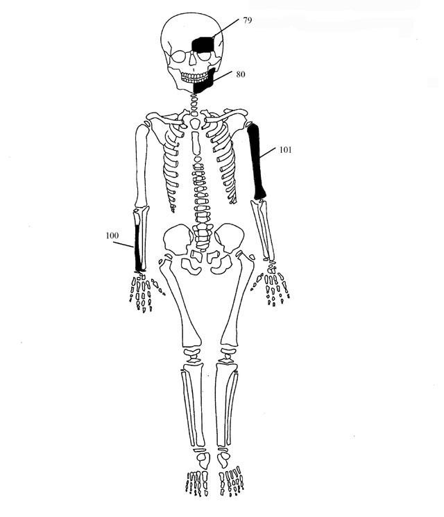 Εικ. 7. Ενδεικτική εκπροσώπηση οστών Ατόμου 4.