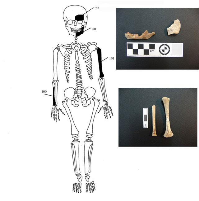 Εικ. 8. Ενδεικτική εκπροσώπηση οστών Ατόμου 4 με φωτογραφίες οστών.