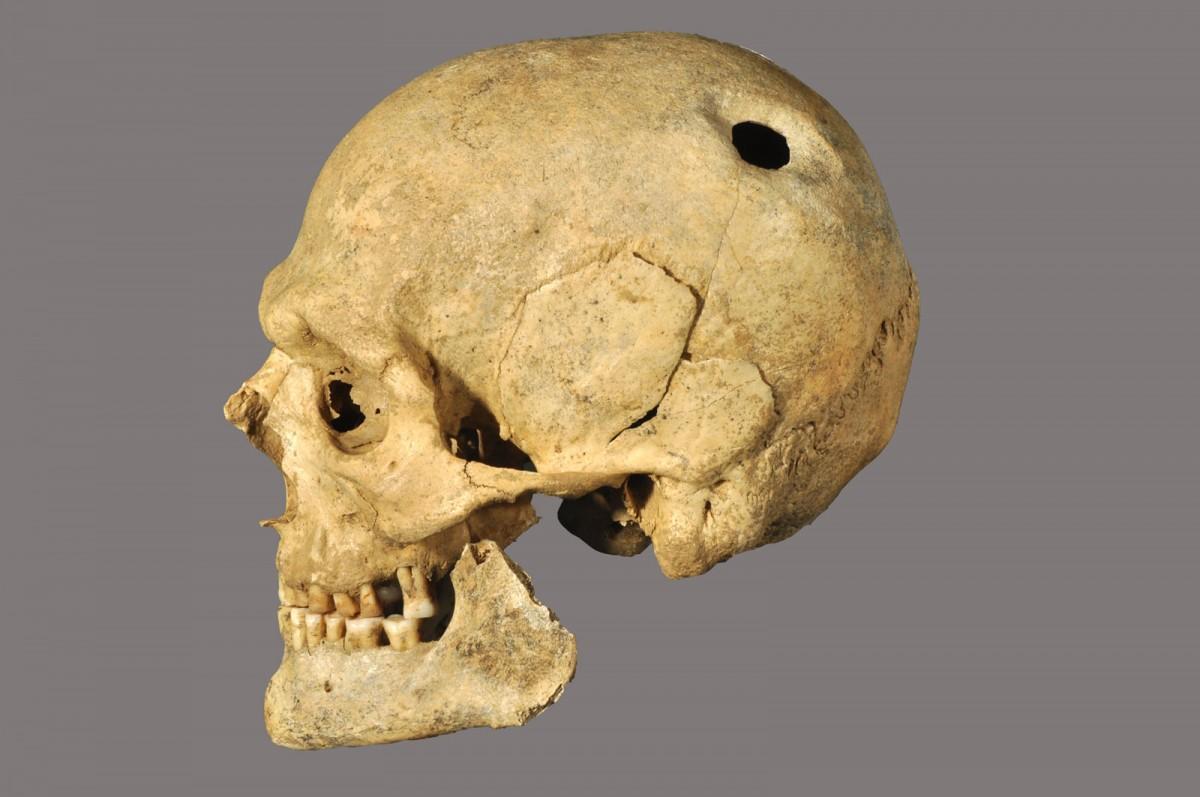 Εικ. 31. Κρανίο άνδρα με ίχνη χειρουργικής επέμβασης (τρυπανισμός). Β΄ μισό 2ου αι. π.Χ. Πόλη της Χίου (Ατσική - οικόπεδο Καραγιώργη).