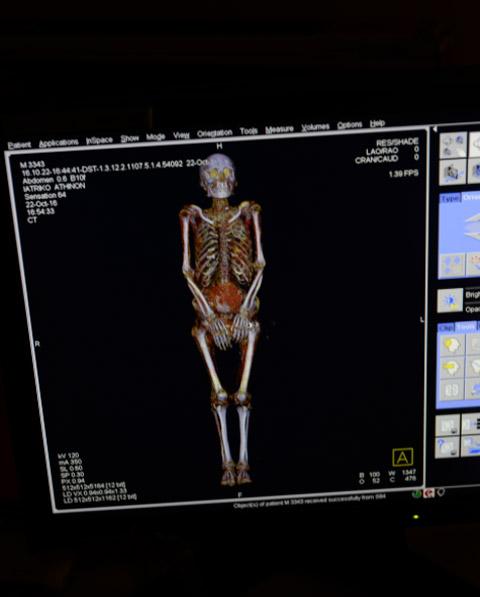 Εικόνα από τον αξονικό τομογράφο του Ιατρικού Αθηνών, στην οποία διακρίνεται ο σκελετός της μούμιας του Σηχέμ. © ΥΠΠΟΑ/ΕΑΜ-Όμιλος Ιατρικού Αθηνών, φωτ.: Ελ.Α. Γαλανόπουλος.