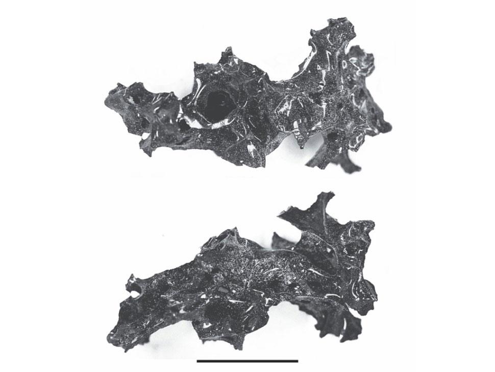 Υαλοποιημένος εγκέφαλος θύματος της έκρηξης του Βεζούβιου το 79 μ.Χ. Φωτ.: The New England Journal of Medicine.