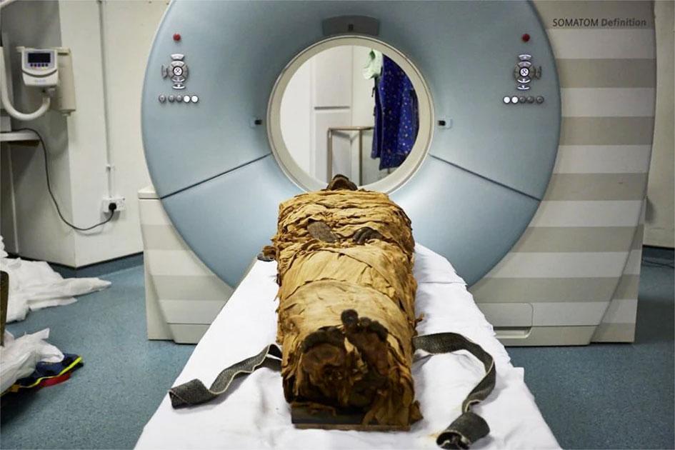 Η μούμια του Νεσιαμούν στον αξονικό τομογράφο (φωτ.: © Leeds Teaching Hospitals/Leeds Museums and Galleries).